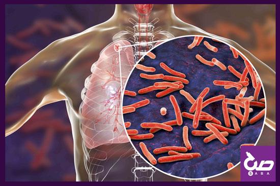 وز جهانی مبارزه با بیماری سل